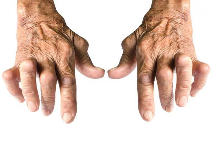 Какой врач лечит артроз и артрит суставов, к какому доктору можно обратиться