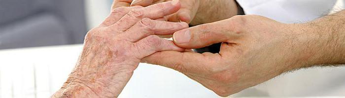 Блуждающий артрит - Ортопед.info