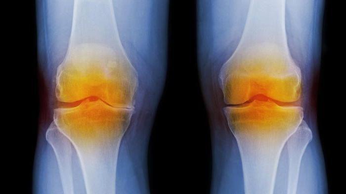 Где делают уколы в голеностопные суставы при ревматоидном артрите