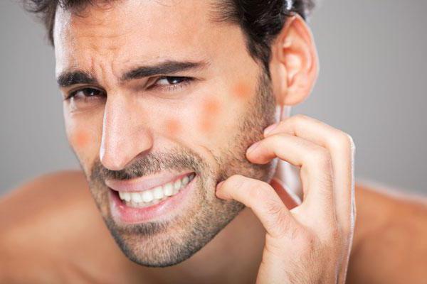 Как вылечить себорейный дерматит на голове: советы дерматолога