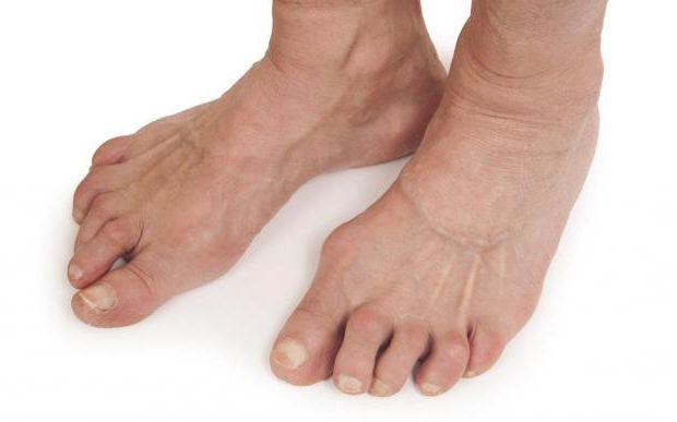 Как лечить артрит стопы в домашних условиях: обзор методов, эффективные способы и рекомендации