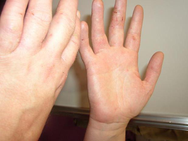 аллергический дерматит симптомы и лечение