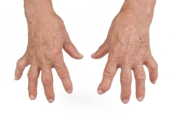 Антибиотики при артрите и артрозе: особенности применения, схема и рекомендации