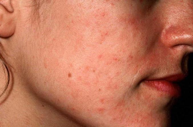 Дерматит на лице: фото, виды и методы лечения