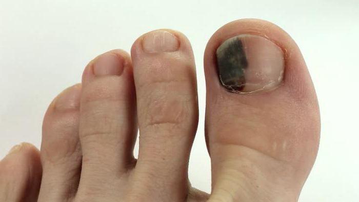 Как долго проходит подногтевая гематома на большом пальце ноги и как ее лечить