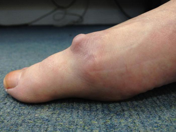 Разработка суставов пальцев ног ядрышки в тазобедренном суставе фото