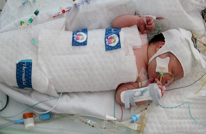 асфиксия новорожденных причины