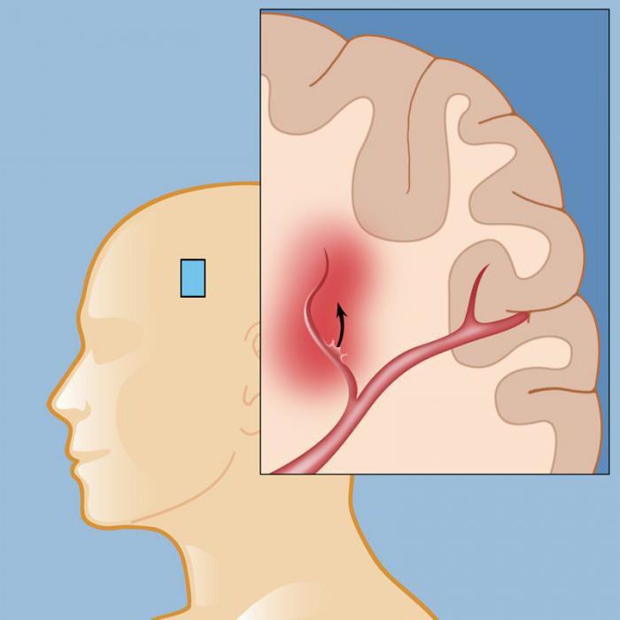 Хроническая и острая субдуральная гематома головного мозга и последствия после ее удаления