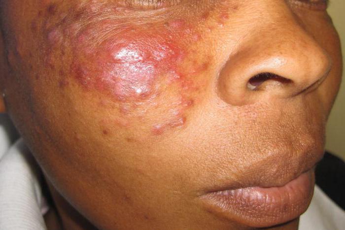 эозинофильная гранулема у детей