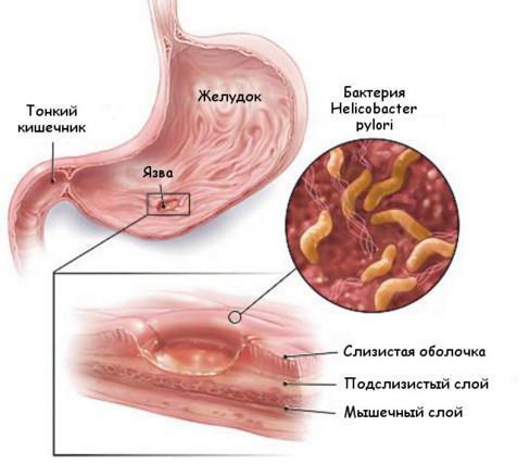 Лимфоидные фолликулы в кишечнике