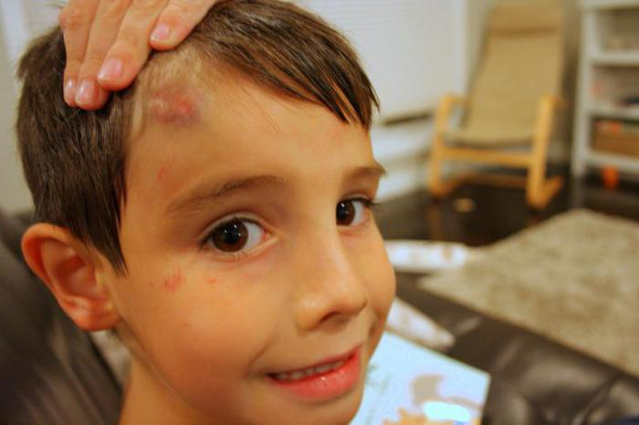 Гематома на голове: последствия и лечение