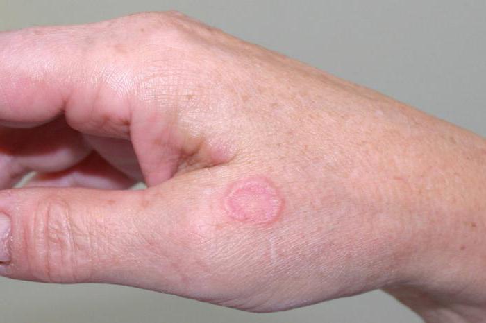Кольцевидная гранулема у детей и взрослых: причины и лечение