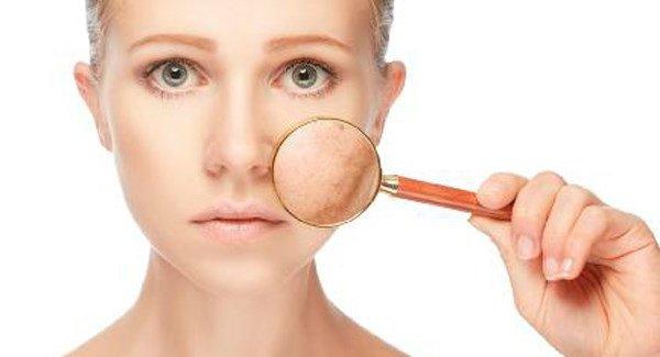 дерматит на лице себорейный