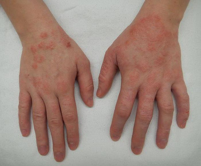Кожные заболевания у человека на нервной почве
