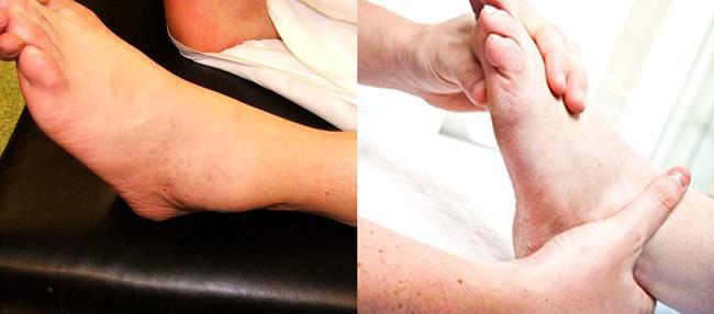 Артрит голеностопного сустава (голеностопный артрит) – причины, симптомы и лечение