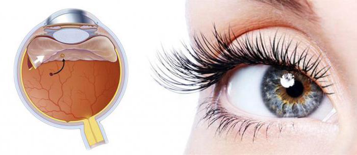 1926314 - L'angiopathie rétinienne dans les deux yeux provoque des symptômes et un traitement