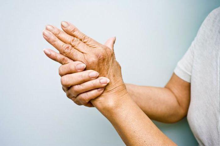 обезболивающие при ревматоидном артрите