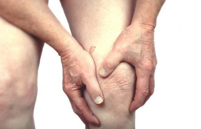 Обезболивающие при артрите и артрозе