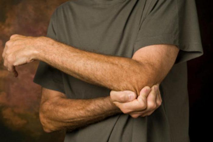 Как побороть артрит эффективные методы и профилактика