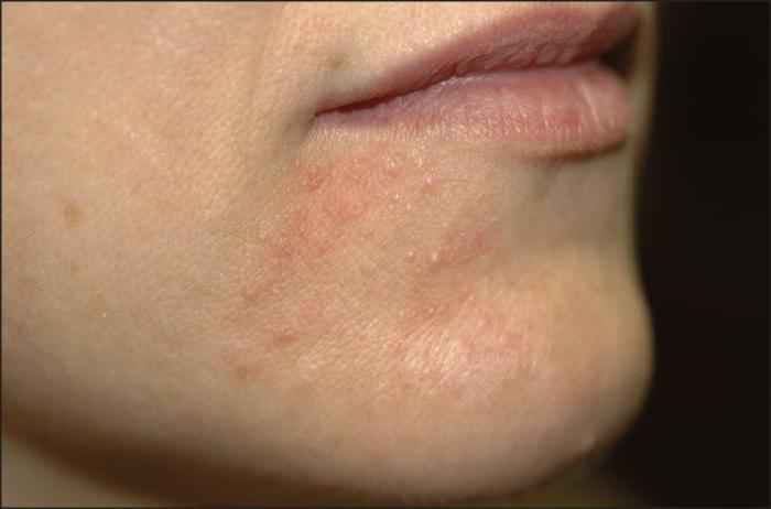 Схема лечения периорального дерматита