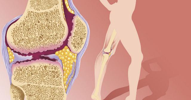 метотрексат отзывы при ревматоидном артрите