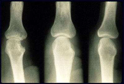 рентген стадии и признаки ревматоидного артрита ра