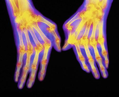 степени стадии ревматоидного артрита