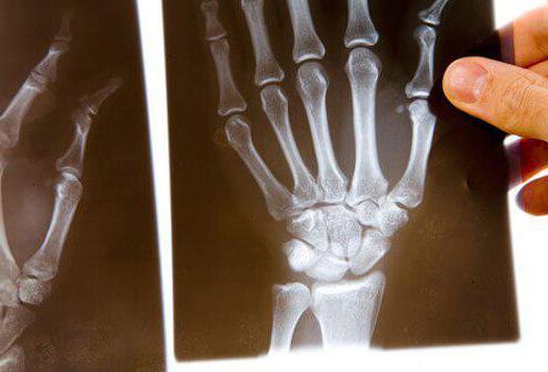 рентгенологическая стадия артрита по штейнброкеру