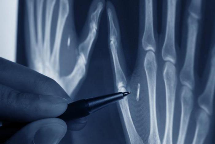 ревматоидный артрит глазами рентгенолога