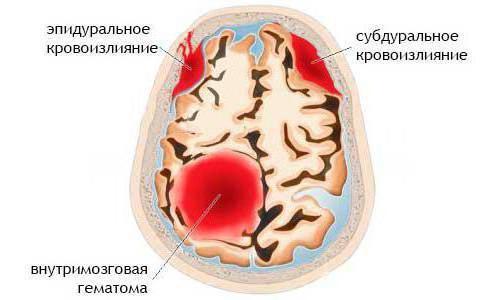 Эпидуральная гематома