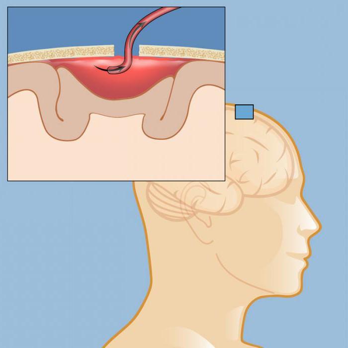 Гематома головного мозга после операции: последствия и методы лечения