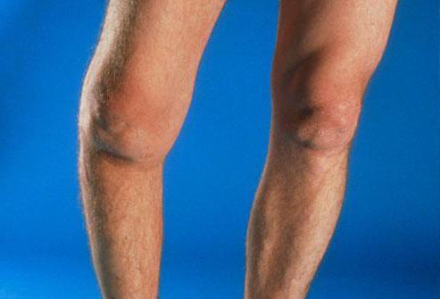Диклофенак при артрите коленного сустава фото