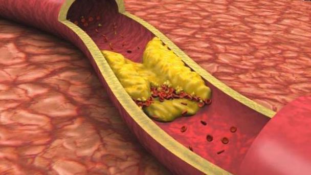Диффузный кардиосклероз: причины, симптомы, лечение, прогноз