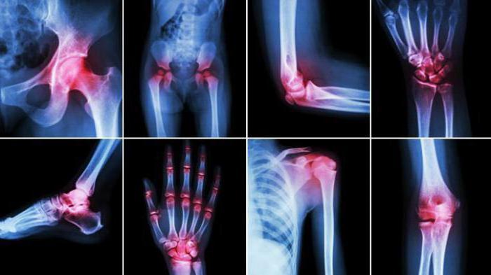 Недифференцированный артрит этиология признаки и методы лечения