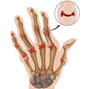 Сестринский процесс и уход при ревматоидном артрите