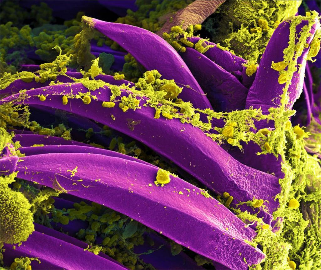 инфекционные заболевания пищеварительной системы