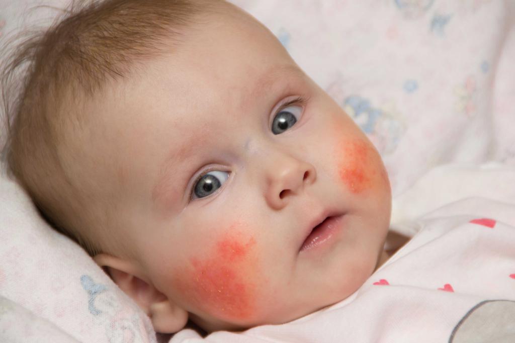 Дерматит новорожденных: виды, основные симптомы.