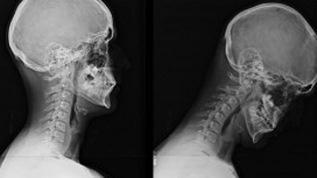 диагностики причин боли в шее