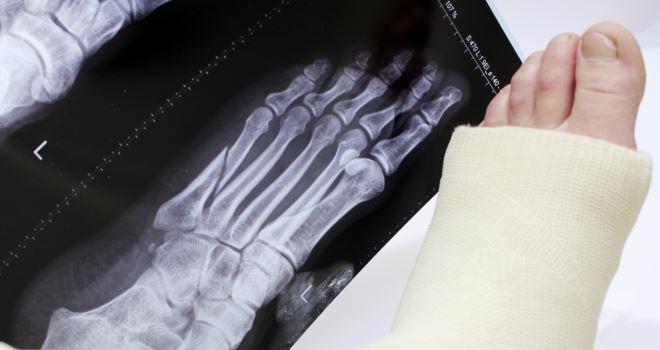 Перелом плюсневой кости стопы у ребенка