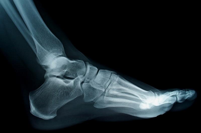 Типы переломов плюсневой кости стопы и причины возникновения трещин