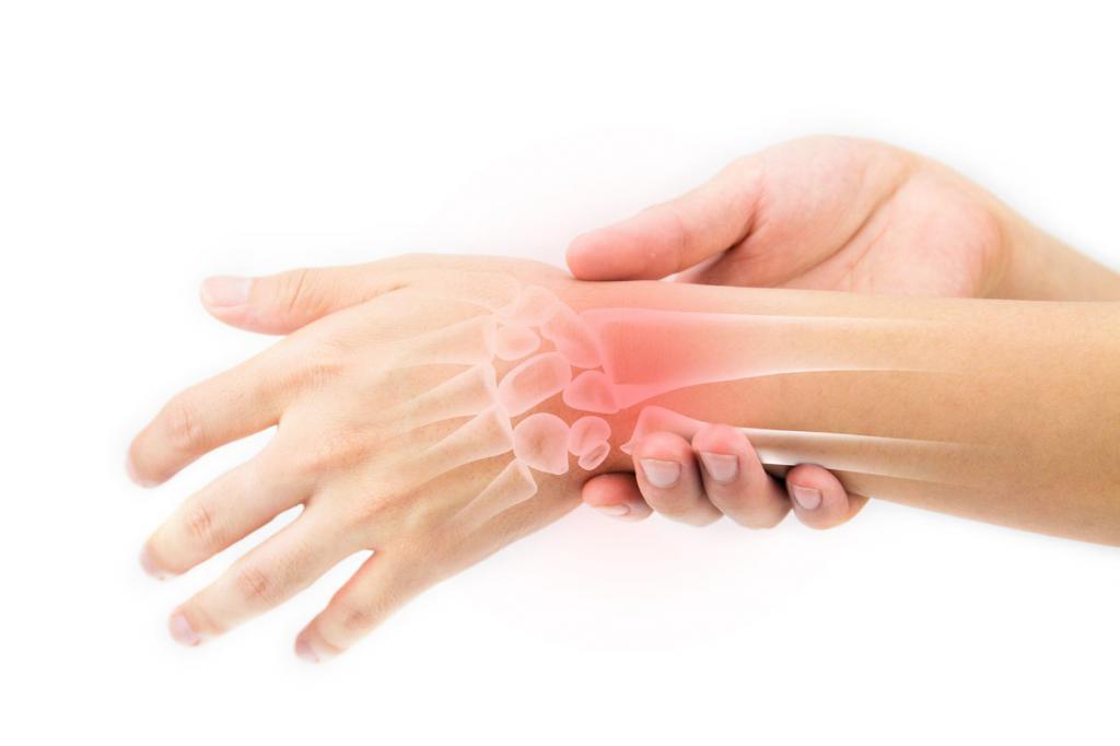 Стандарты Лечения Ревматоидного Артрита