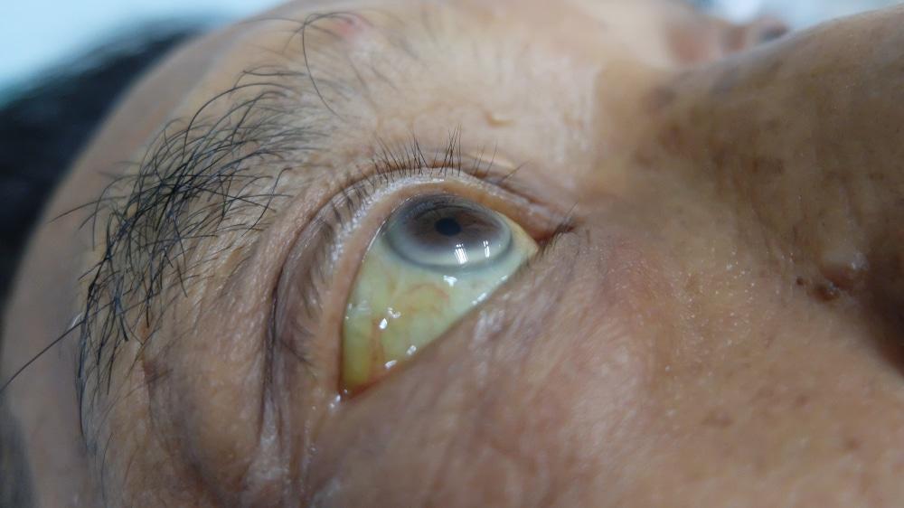 Желтое лицо и желтые белки глаз – причины и лечение