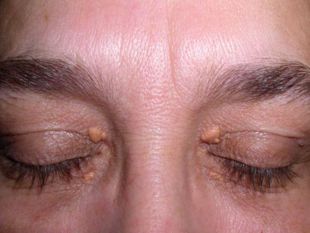 Жировик на веке и под глазами: как избавиться. Как убрать жировик на глазу. Удаление жировиков вокруг глаз
