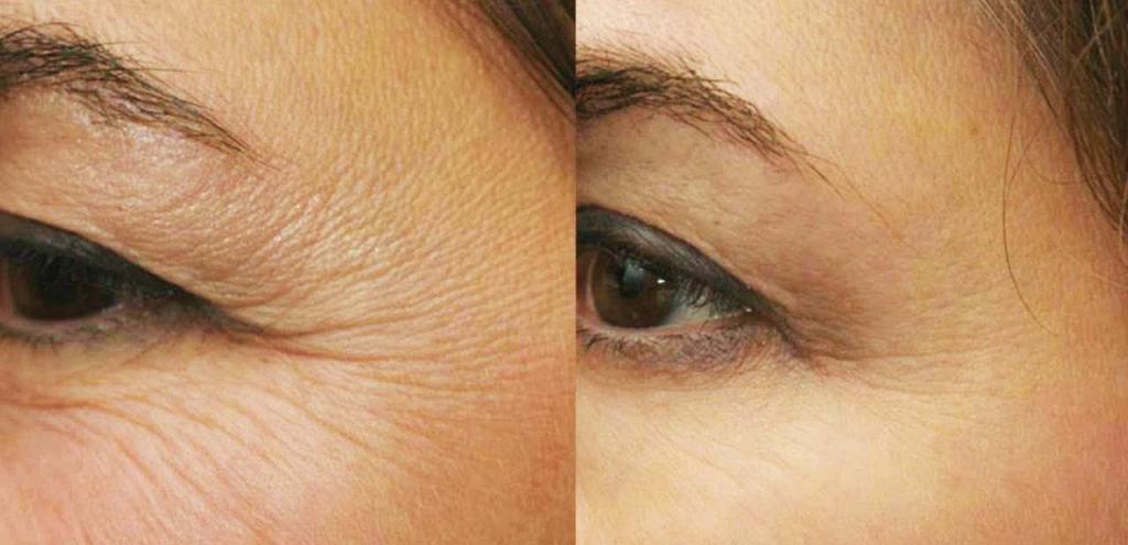 Лучшее масло для кожи вокруг глаз