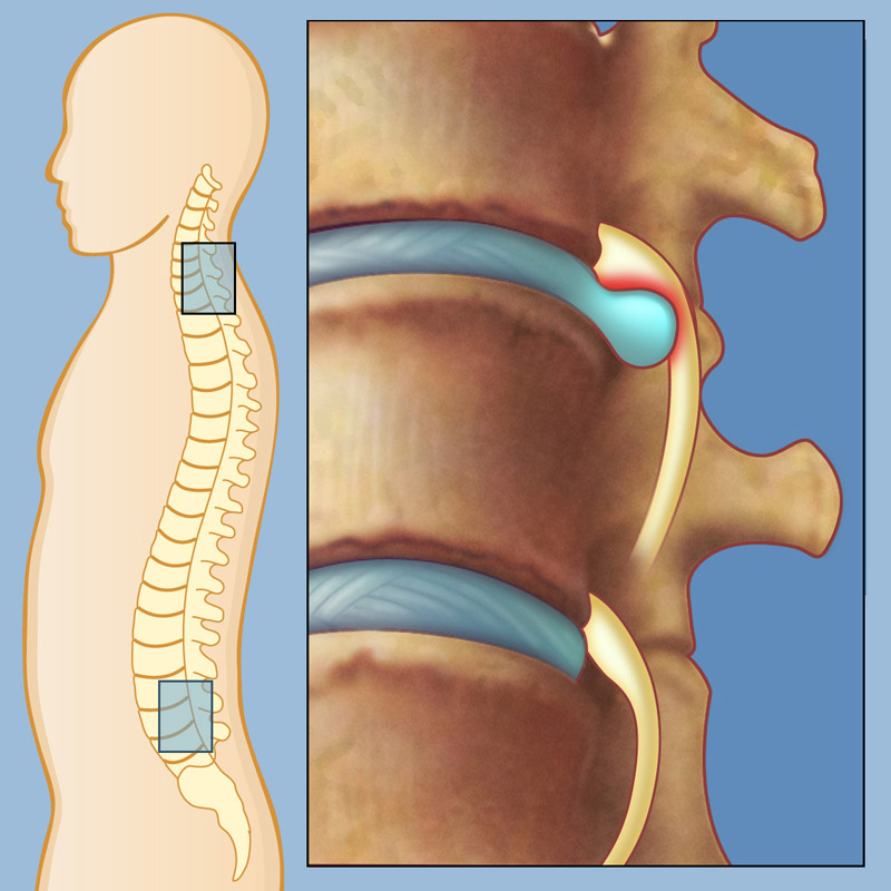 Грыжа позвоночника поясничного отдела лечение при острой боли в