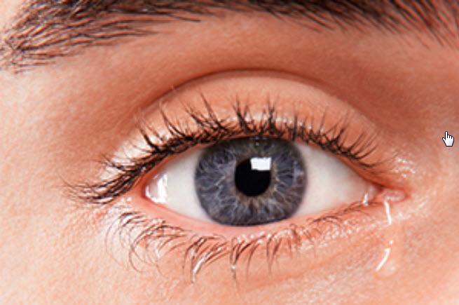Что делать если слезятся глаза на улице