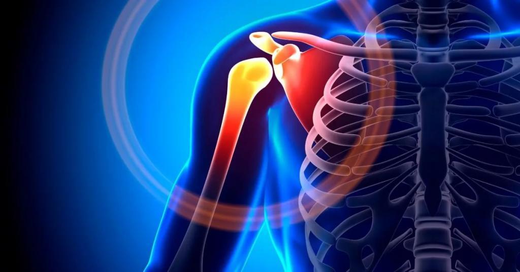 Симптомы и методы лечения хондроза плечевого сустава
