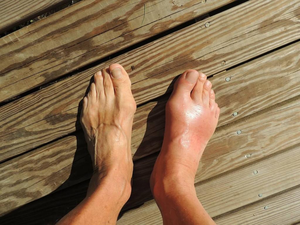 Боль в подъеме стопы: причины и лечение ноги, почему болит ступня