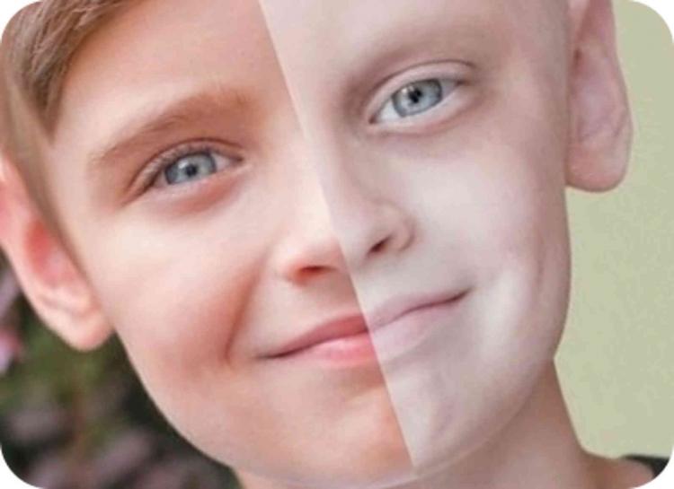 Лейкоз у ребенка: причины возникновения, первые признаки и лечение