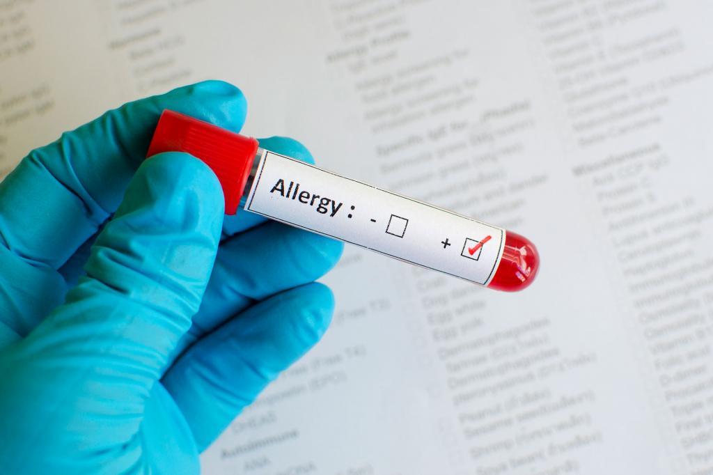 К какому врачу обращаться при аллергии